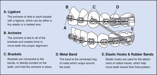 braces_components2