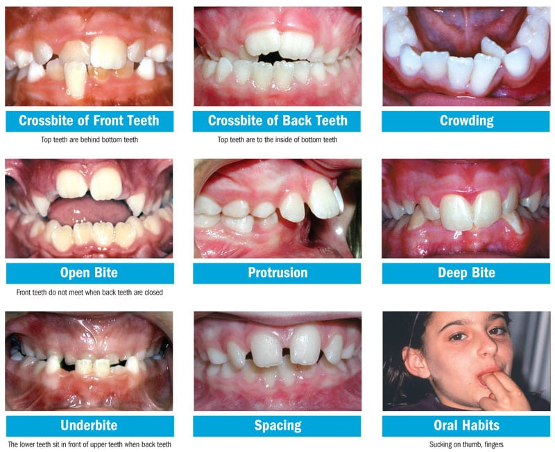 Images Bite Problems Common Bite Problems In Kids