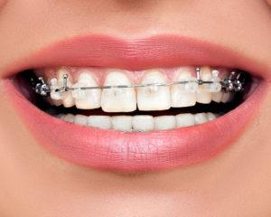 clear braces Toronto
