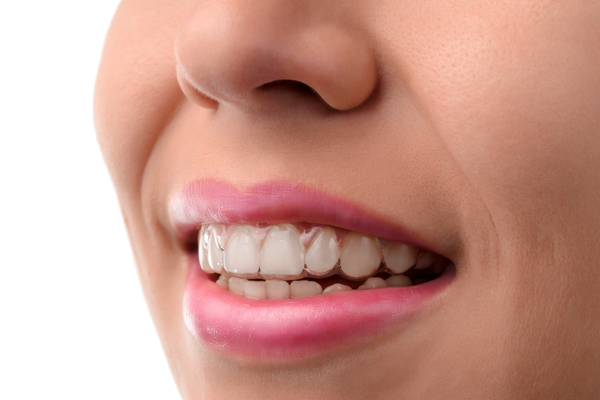 invisalign-vs.-smile-direct-club
