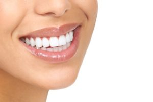 invisalign vs. smile direct club