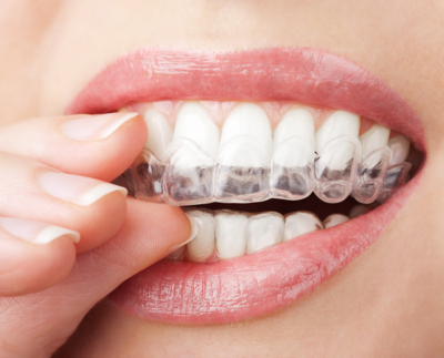 invisalign cost scarborough on