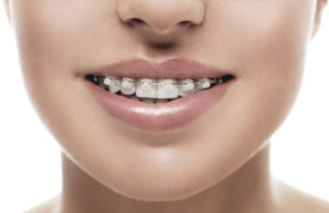 orthodontics toronto on