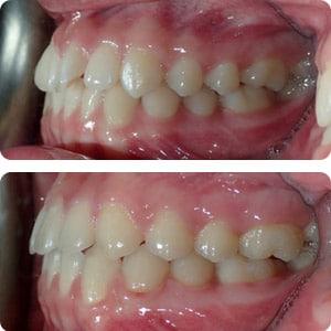 toronto invisalign for crooked teeth